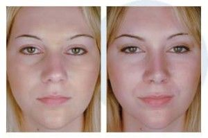 Before And After Rhinoplasty Surgery Best Rhinoplasty