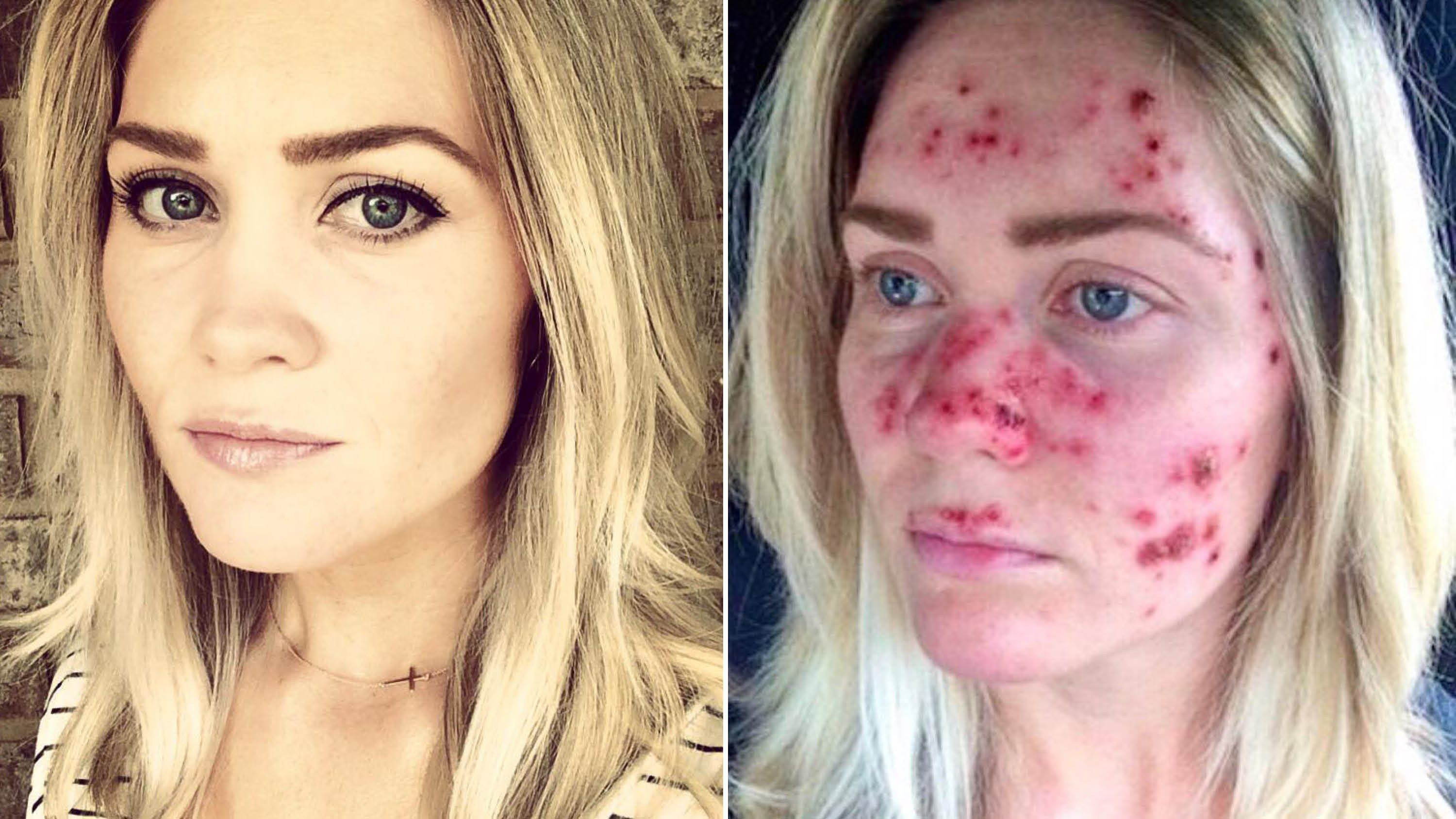 Image Result For Imiquimod Cream Before And After Warts In 2020 Beauty Hacks Natural Beauty Tips Beauty Guide