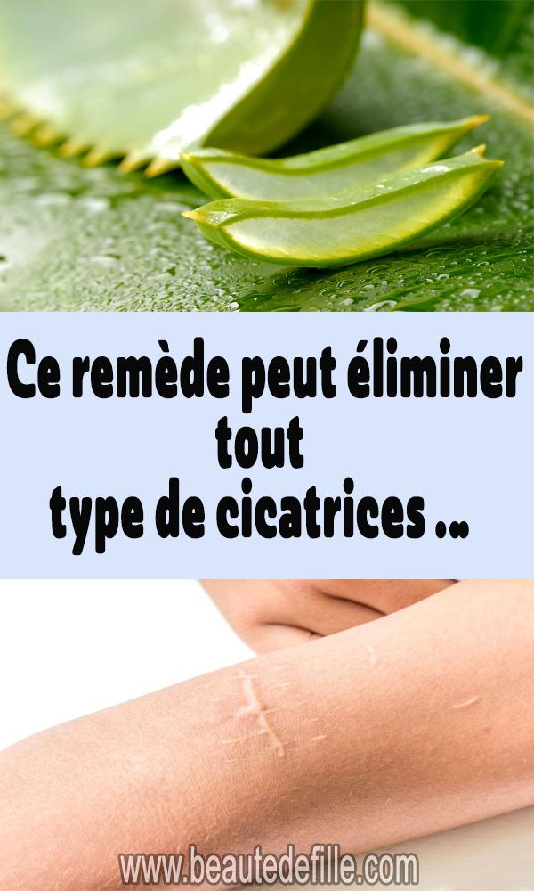 Ce remède peut éliminer tous les types de cicatrices …   – remèdes naturels