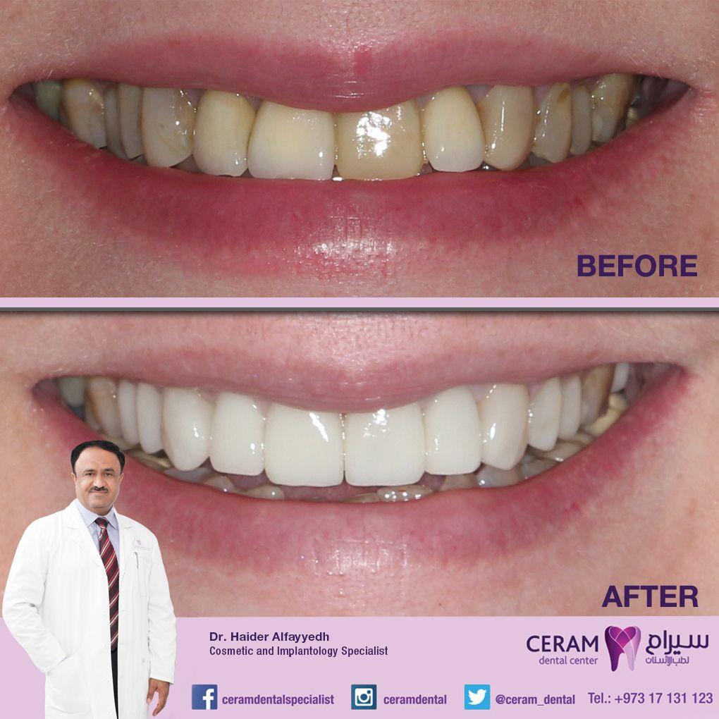 Emax Veneer And Crowns By Dr Haider Alfayyadh Cosmetic And Implantology Specialist تجميل الاسنان بالايماكس فنيير و تلبيس Dental Center Natural Teeth Dental