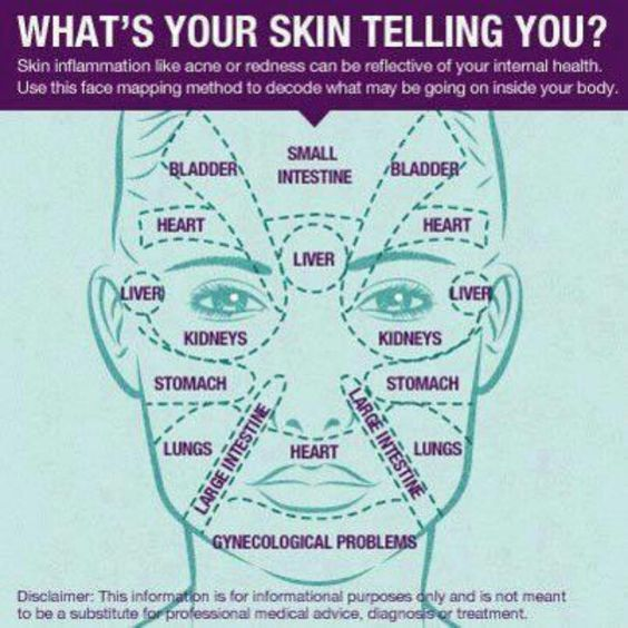 An Interesting Diagram That Shows What Can Cause Acne On Different