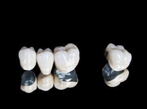 Is a Tooth Bridge Right for You? Dental Bridge Costs, Types and More