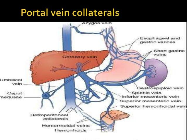 Variceal Haemorrhage With Special Blood Pinterest Portal