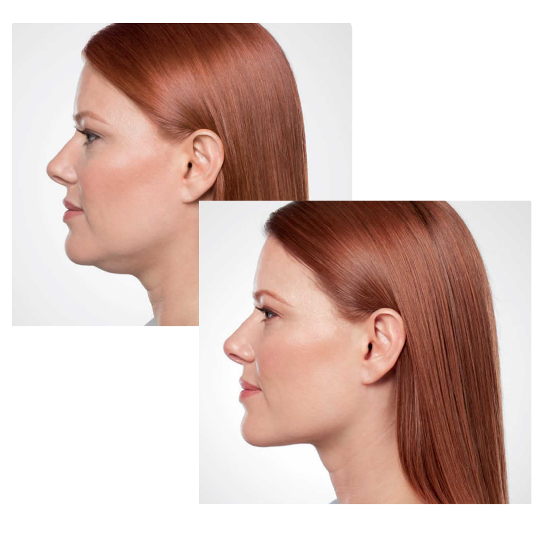 Pin by Faces of South Tampa on Kybella South Tampa