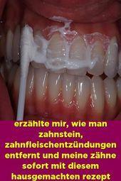Ein befreundeter zahnarzt erzählte mir wie man zahnstein ...