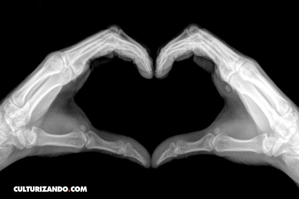 Descubrimientos Accidentales: Los Rayos X | Salud-Anatomía ...