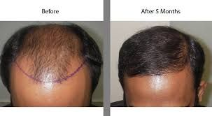 Is a #cost issue matter in the critical hair transplant #surgery?