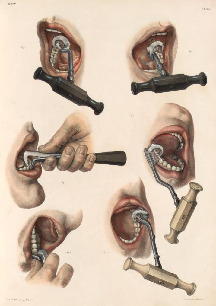 Tooth extraction of a molar and an incisor with 3 types of forceps ...