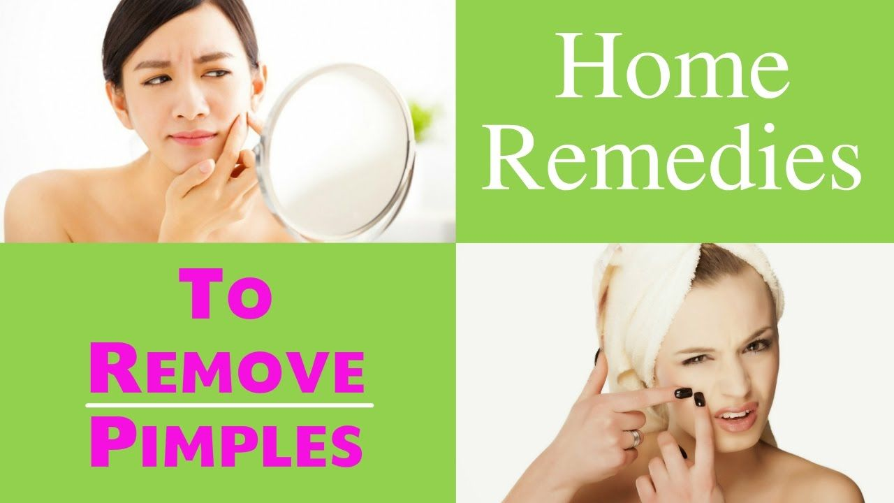 Home remedies for pimples 8 home remedies to remove