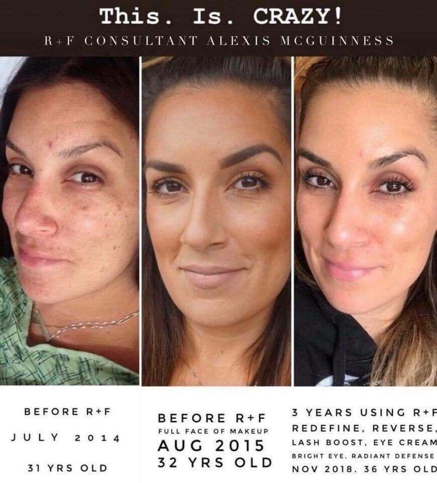 Did You Know 20 Of Aging Is Genetic I M No Mathematician But That Means 80 Is Up To Rodan And Fields Regimen Rodan And Fields Rodan And Fields Consultant