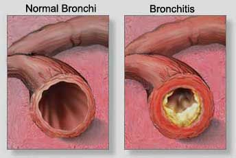 Post Nasal Drip and how it develops into Bronchitis and