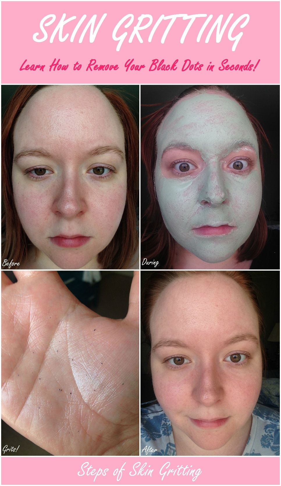 Skin Gritting: Learn How to Remove Your Black Dots in Seconds