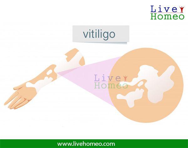 vitiligo or leucoderma is a skin disease where the melanocytes get destroyed and don't…