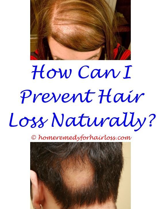 dermatologist specializing in hair loss uston tx - does ...