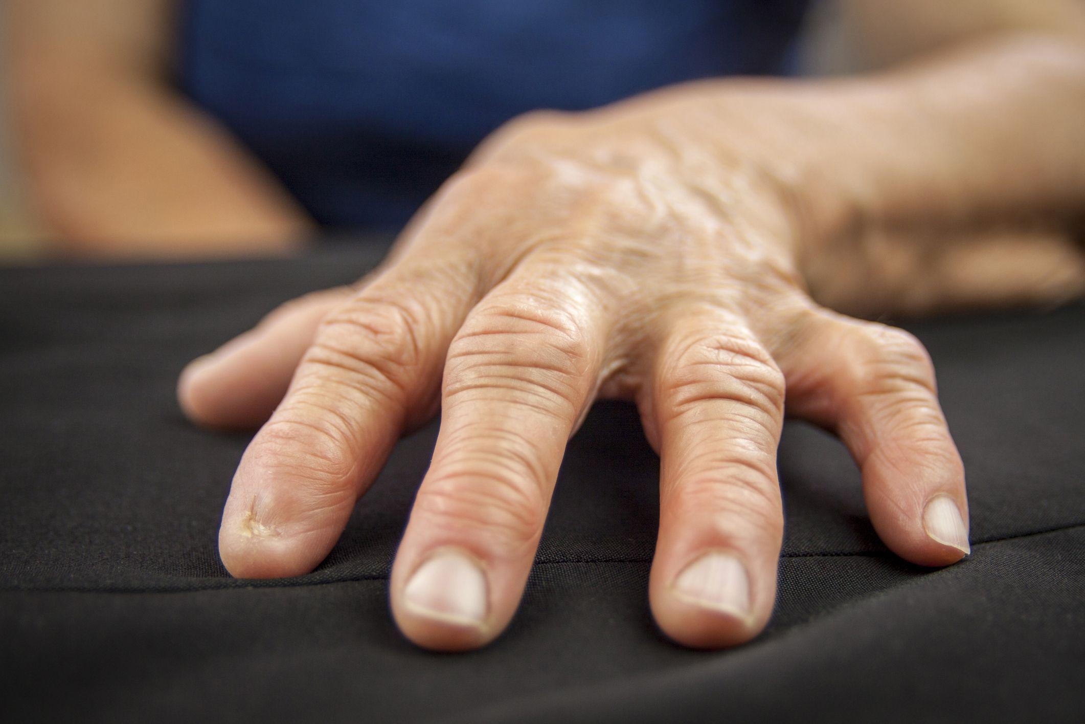 От чего может быть артрит пальцев рук фото