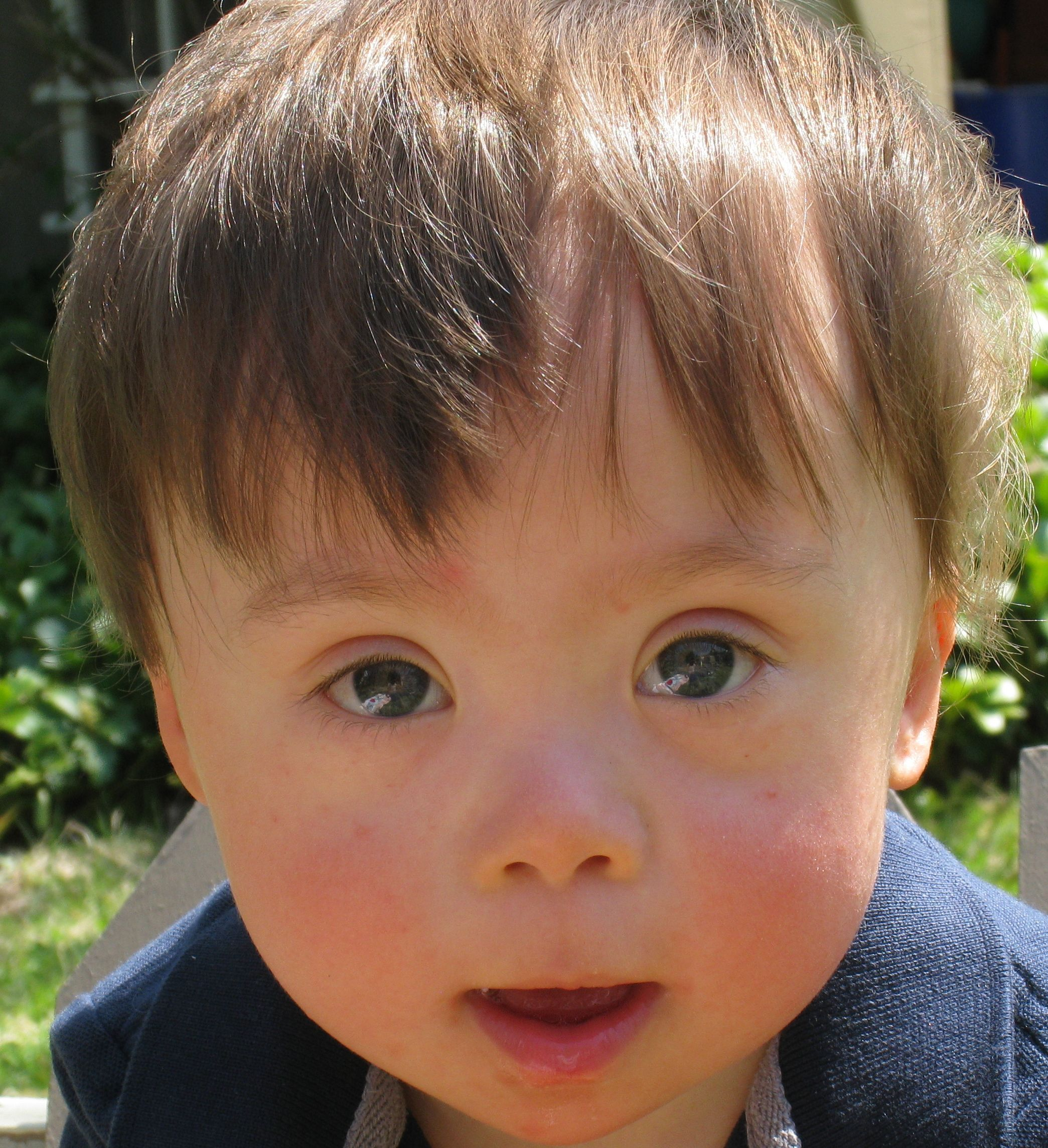 down syndrome essays @example essays down syndrome 2 pages 604 words down syndrome is usually recognized soon after birth because of characteristic facial features such as a flattened nose, upward slanting of.