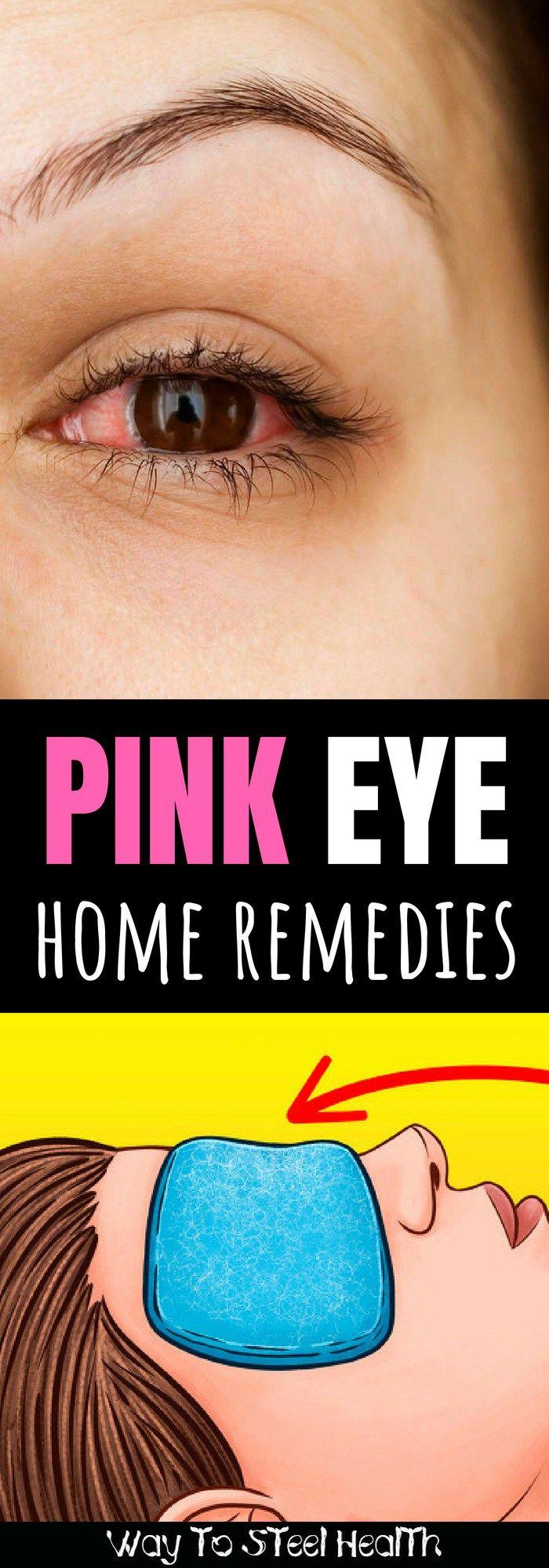 dc4f10aaa83928771c762a1a52e22b67 - How To Get Rid Of Eye Strain Home Remedies