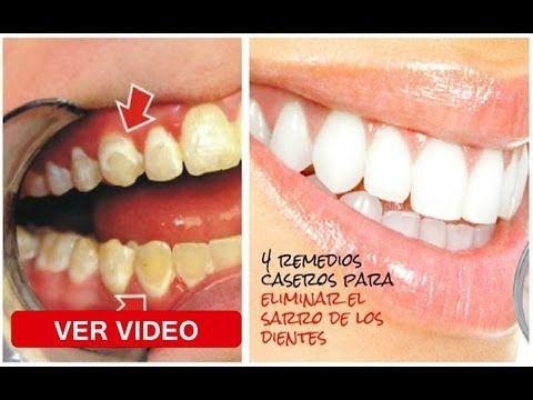 Sea Su Propio Dentista! Mire Como Eliminar El Sarro De Los ...