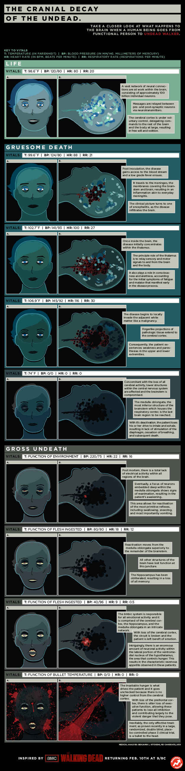 Infographic: Check Out The Anatomy Of A Zombie\'s Brain | Anatomy ...