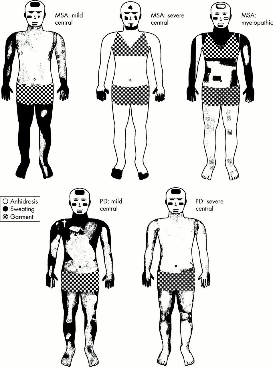 Autonomic nervous system testing may not distinguish