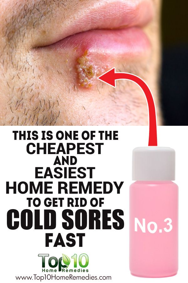 Natural Way To Get Rid Of Cold Sore On Lip