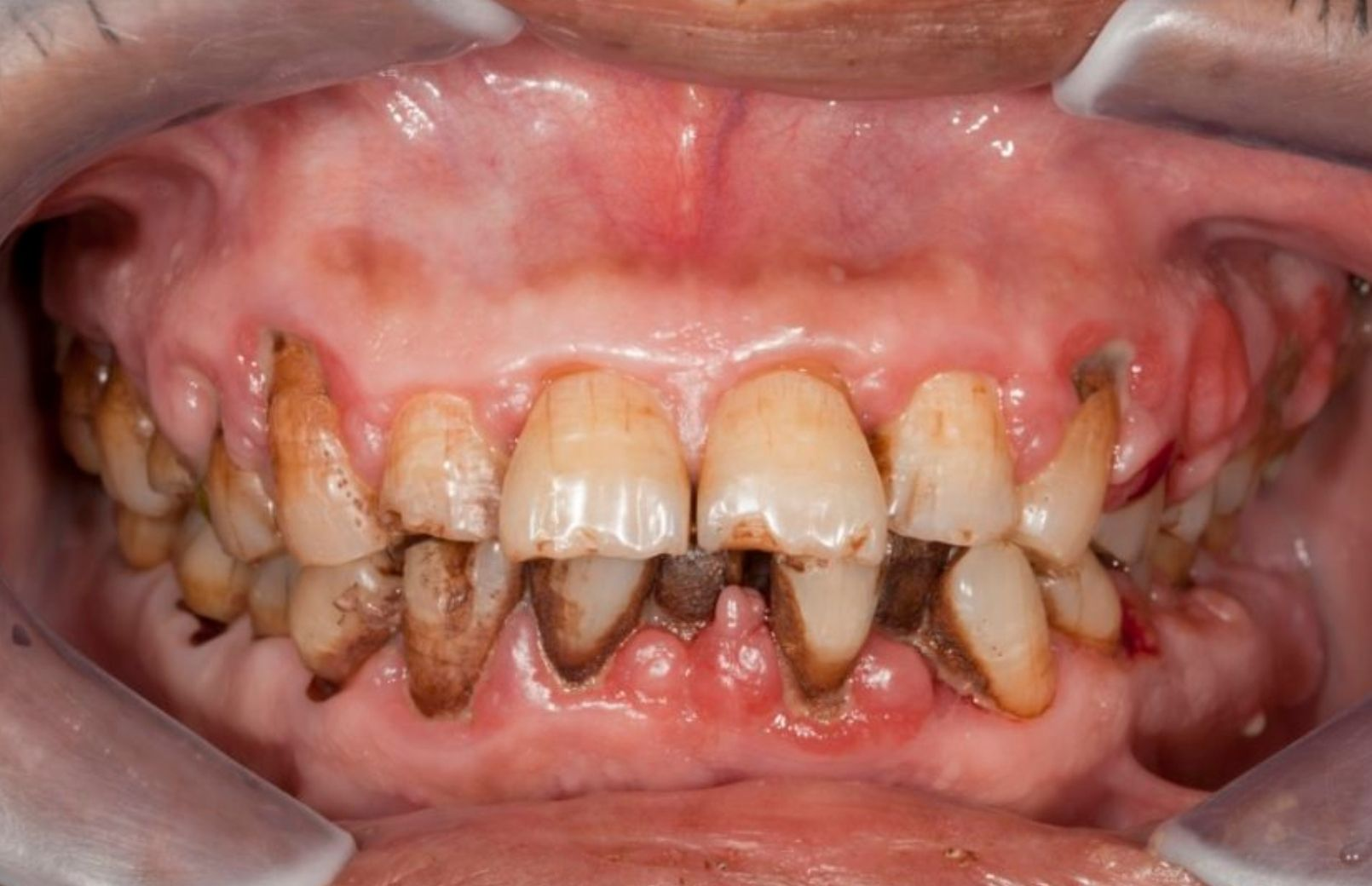 A recent study has periodontists experts in the treatment