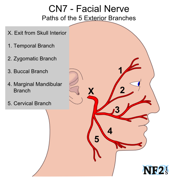 Cn7 Facial Nerve Damage Facial Nerve Nerve Anatomy Facial Nerve Anatomy