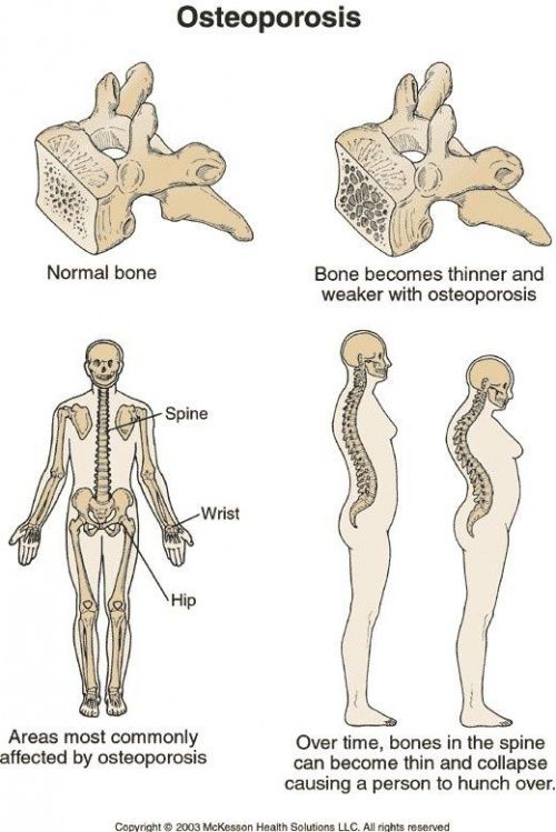 30+ Does osteoporosis cause memory loss ideas