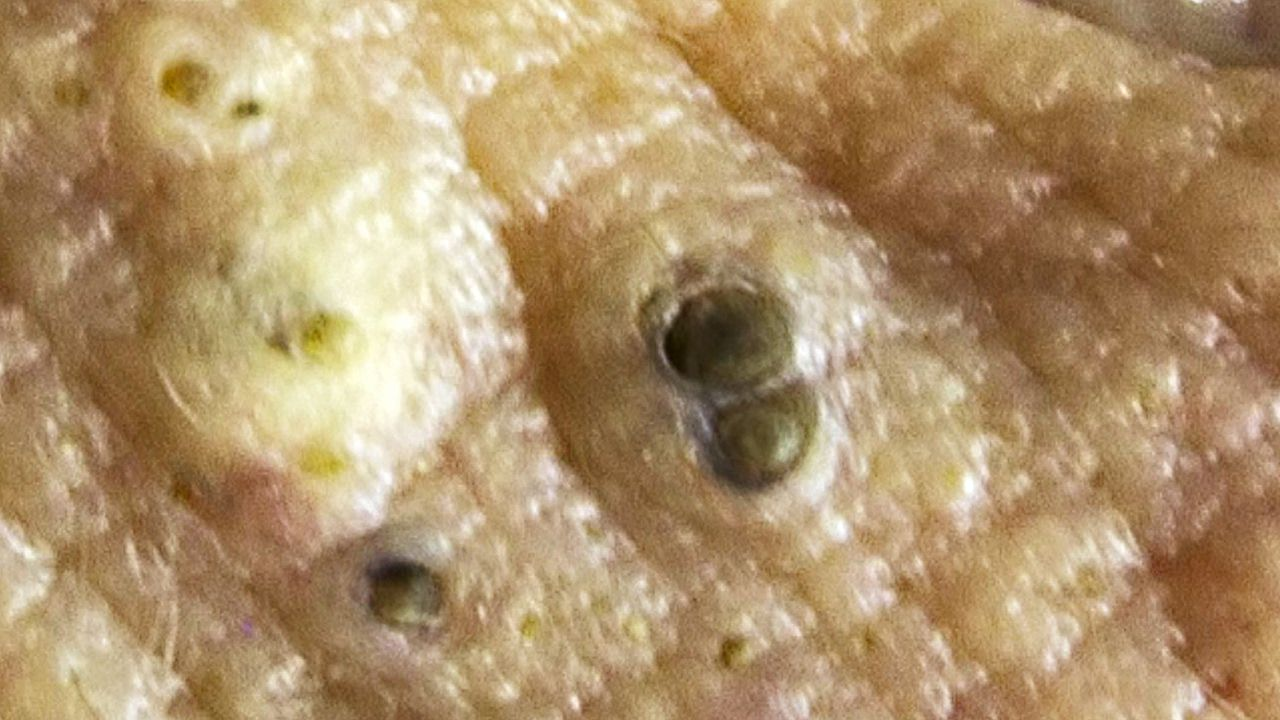 What is a Dilated Pore of Winer? 👍👍👍👍👍👍👍👍👍 HOT