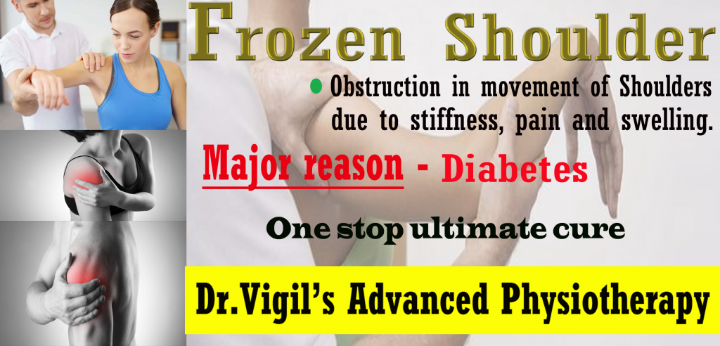 Pin by Dr. Vigils Advanced Physiotherapy on Frozen ...