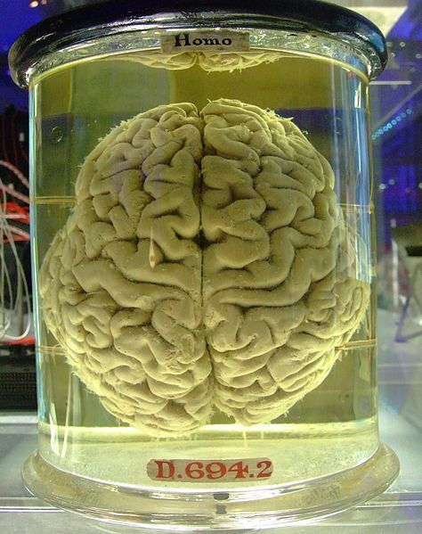 Human brain in a vat