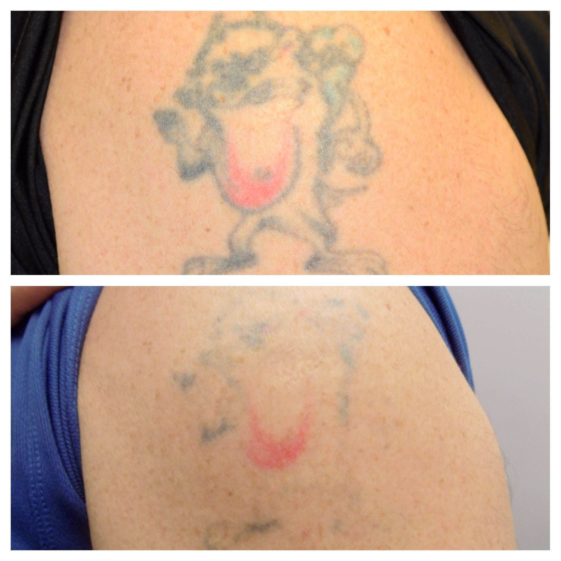 Laser tattoo removal most effective lasers for all colors