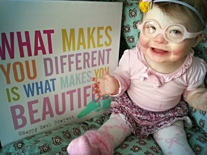 What makes you different is what makes you beautiful.  -->  article & beautiful videos about Down Syndrome and the Happy Soul Project  #celebratelife