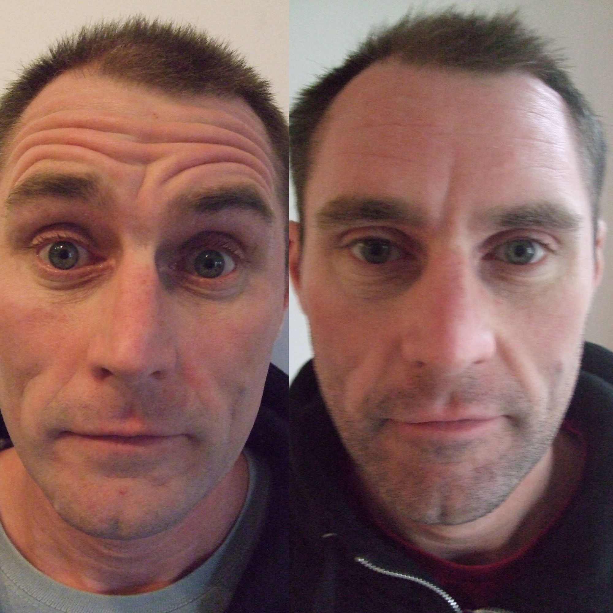 Botox Before And After Men Forehead