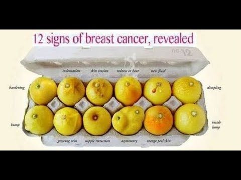 [Video] Breast cancer is one of the most common types of cancer.
