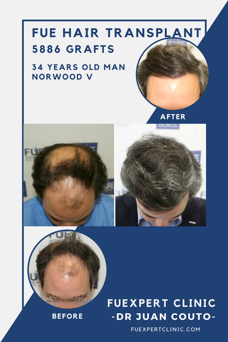Before After 5886 Grafts - FUE Hair Transplant at FUExpert Clinic by Dr  Juan Couto -