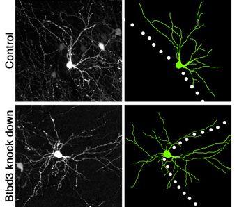 Neuron-Orienting Molecule Aids High-Def Senses