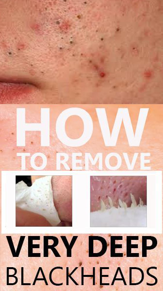 Simple Ways To Remove Blackheads Quickly