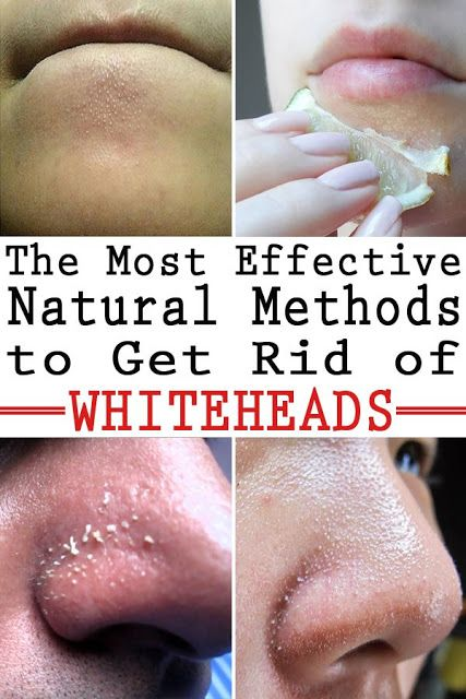 how to clean my face of whiteheads