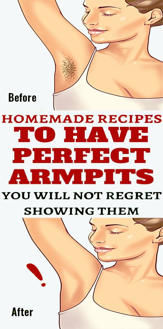 Get Perfect Armpits With These Homemade Remedies #hairremoval