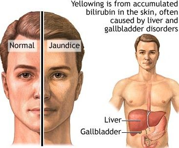 Jaundice Causes Symptoms And Types Gilbert S Syndrome Fatty