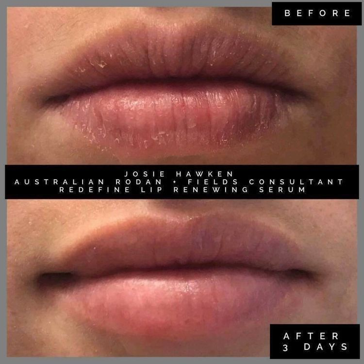 Chapped lips? Use Rodan and Fields' Redefine Lip Renewing Serum