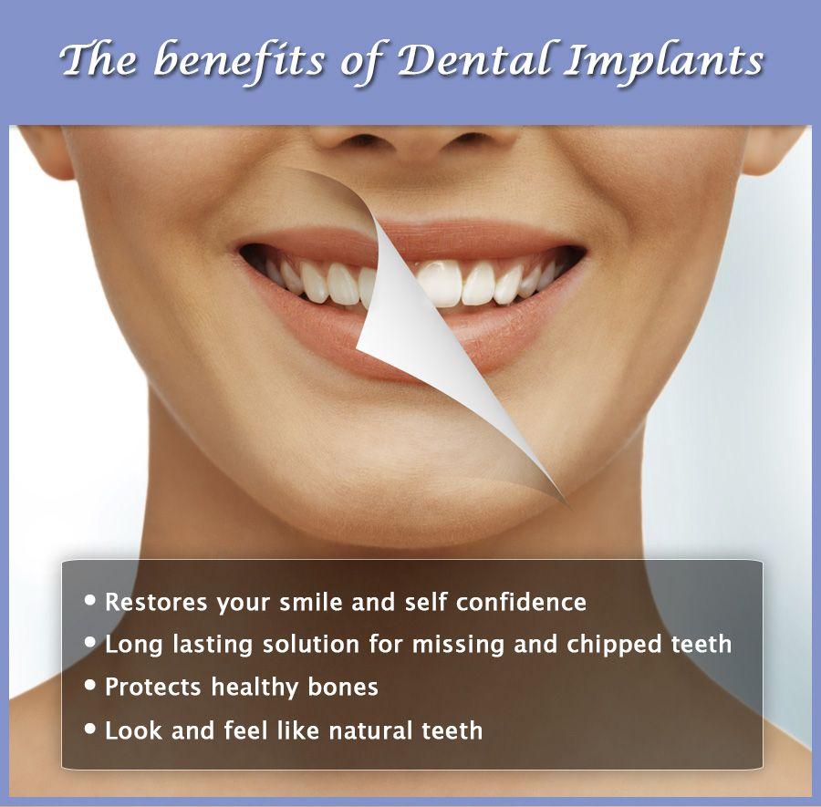 Dental service dental implants implant dentistry dental