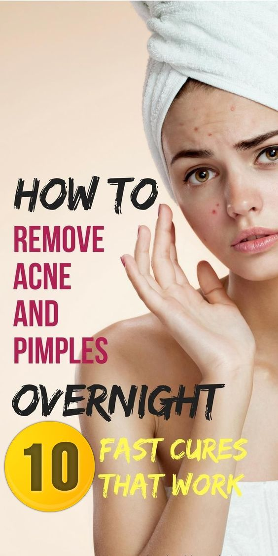 How To Get Rid Of Pimples Instantly 10 Natural Ways To Get Rid Of Pimples As Fast As Possible How To Remove Pimples Naturally And Permane How To Remove Pimples Pimples How To Get Rid Of Pimples