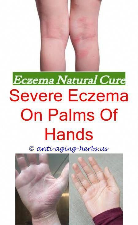 1 guidance atopic eczema in under 12s diagnosis and - 450×733