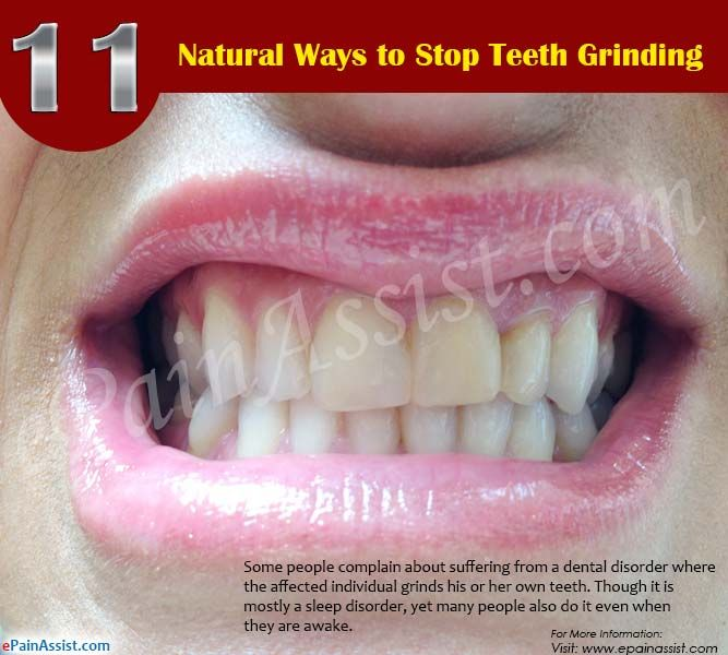 dcacd1001fcdaa6ca87854f99dfc9431 - How To Get My Kid To Stop Grinding Teeth