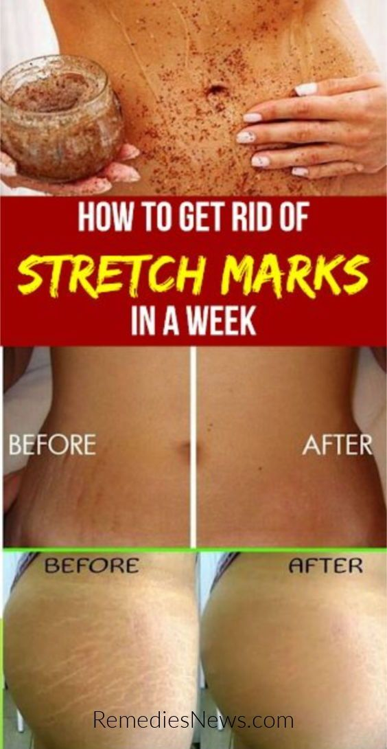 How To Get Rid Of Red Stretch Marks On Bum