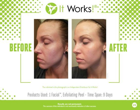 Pin On Results Skin