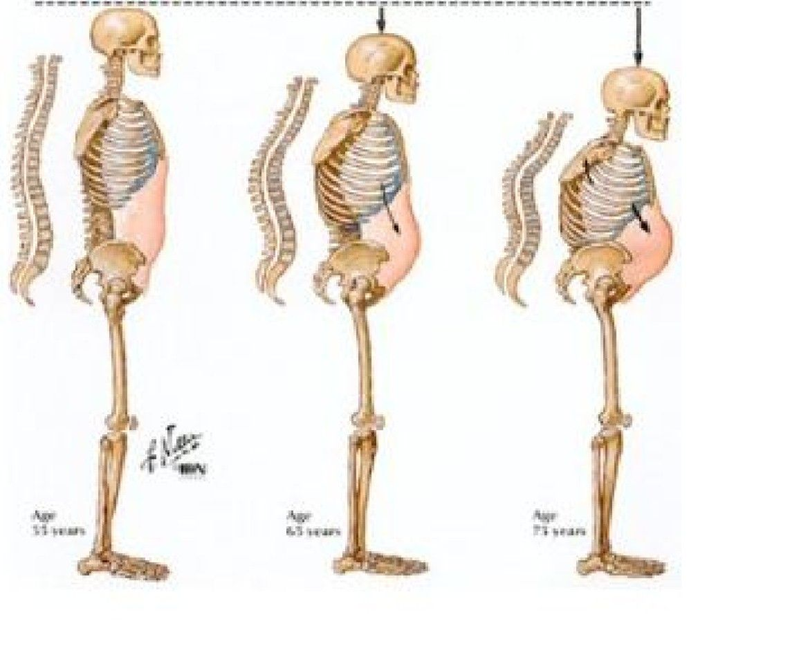 osteoporosis is a bone disease that is most  monly