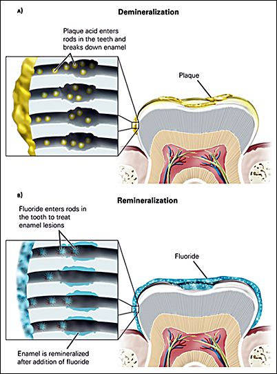 Hydroxyapatite Teeth